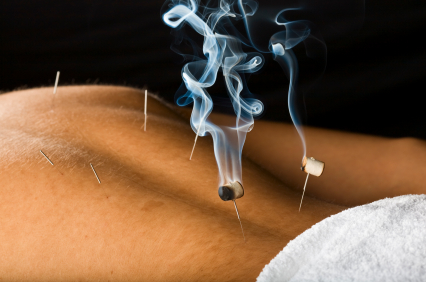 acupuncture for