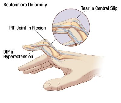 Illustration showing a boutonniere deformity