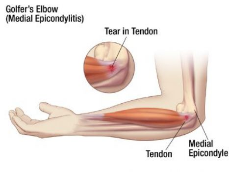 Medial Epicondylitis (Golfer's