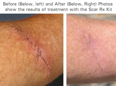 scar rx before after