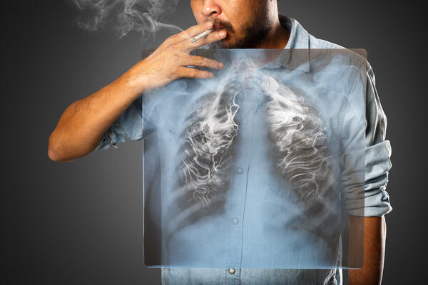 What You Need to Know About Smoking and Lung Cancer