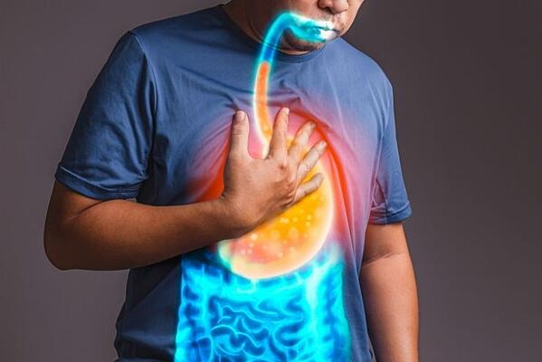 Does Acid Reflux Cause GI Cancer?