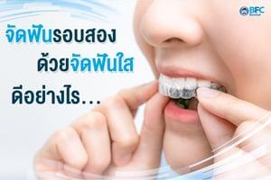 จัดฟันรอบสอง
