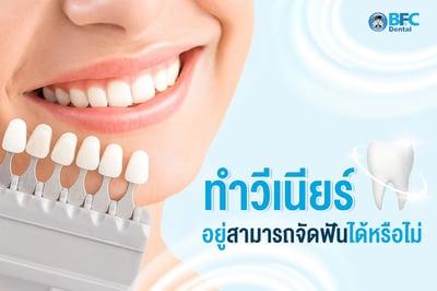 ทำวีเนียร์ อยู่สามารถจัดฟันได้หรือไม่