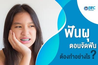 ฟันผุตอนจัดฟัน ต้องทำอย่างไร?