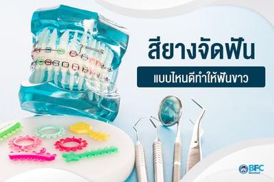 สียางจัดฟัน แบบไหนดีทำให้ฟันขาว