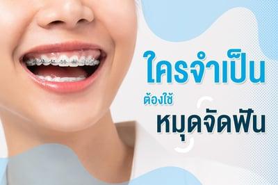 ใครจำเป็นต้องใช้ หมุดจัดฟัน