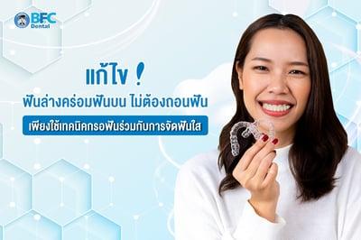 แก้ไข ฟันล่างคร่อมฟันบน ไม่ต้องถอนฟัน เพียงใช้เทคนิคกรอฟันร่วมกับการจัดฟันใส
