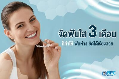 จัดฟันใส 3 เดือน ก็ทำให้ ฟันห่าง ชิดได้เรียงสวย