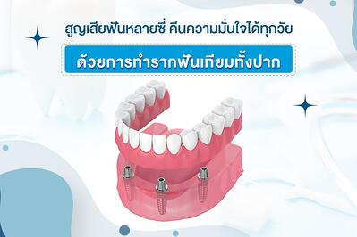 สูญเสียฟันหลายซี่ คืนความมั่นใจได้ทุกวัยด้วยการทำรากฟันเทียมทั้งปาก