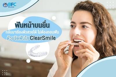 ฟันหน้าบนยื่น กลับมาเรียงตัวสวยได้ ไม่ต้องถอนฟัน ด้วยจัดฟันใส ClearSmile