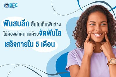 ฟันสบลึก ยิ้มไม่เห็นฟันล่าง ไม่ต้องผ่าตัด แก้ด้วยจัดฟันใส เสร็จภายใน 5 เดือน