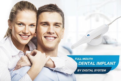FULL MOUTH DENTAL IMPLANT BY DIGITAL SYSTEM