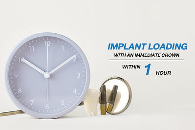 IMPLANT LOADING WITH AN IMMEDIATE CROWN WITHIN 1-HOUR