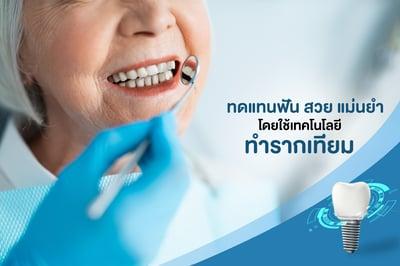 ทดแทนฟัน สวย แม่นยำ โดยใช้ เทคโนโลยีทำรากเทียม