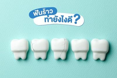 ฟันร้าว ทำยังไงดี?