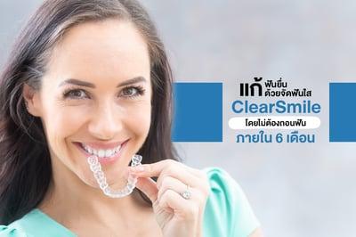 แก้ฟันยื่น ด้วยจัดฟันใส ClearSmile โดยไม่ต้องถอนฟัน ภายใน 6 เดือน