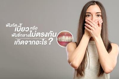ฟันกัดเบี้ยว หรือฟันซี่กลางไม่ตรงกัน เกิดจากอะไร?