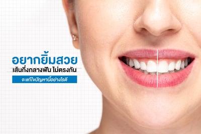 อยากยิ้มสวยแต่ เส้นกึ่งกลางฟัน ไม่ตรงกัน จะแก้ไขปัญหานี้อย่างไรดี