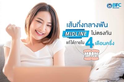 เส้นกึ่งกลางฟัน (Midline) ไม่ตรงกัน แก้ได้ภายใน 4 เดือนครึ่ง