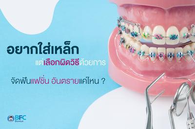 อยากใส่เหล็กแต่เลือกผิดวิธีด้วยการ จัดฟันแฟชั่น อันตรายแค่ไหน ?
