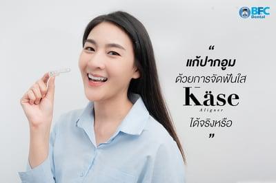 แก้ ปากอูม ด้วยการจัดฟันใส Käse Aligner ได้จริงหรือ