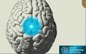 BrainHearing - Oticon