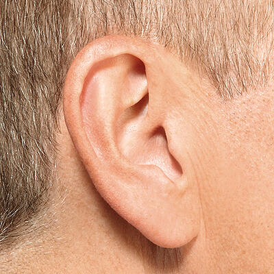 invisible-in-canal-hearing-aid-in-ear-iic-1