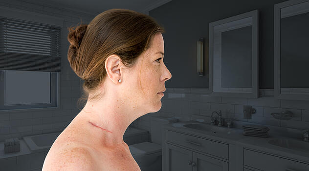 ¿Cómo cuidar una cicatriz?