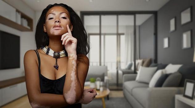 ¿Estás sufriendo de despigmentación de la piel?