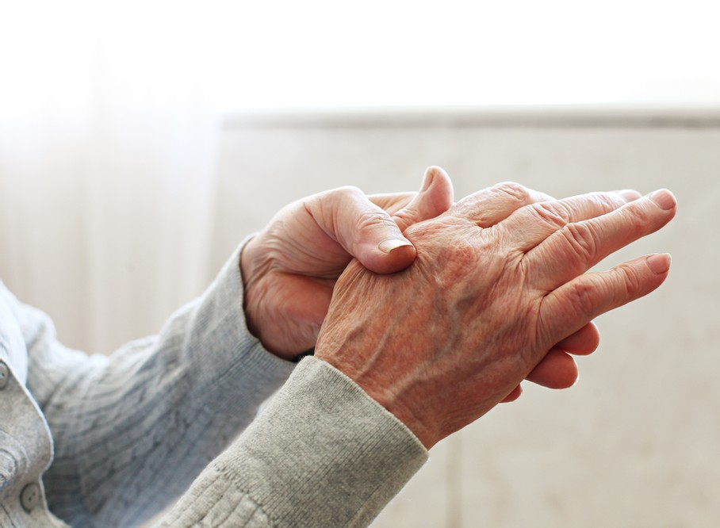 Providing High Quality Care in Rheumatoid Arthritis