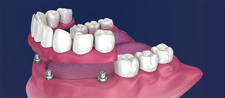 All-on-4 Dental Implants by Nuffield Dental
