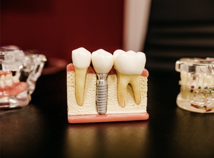 Teeth Implant by Nuffield