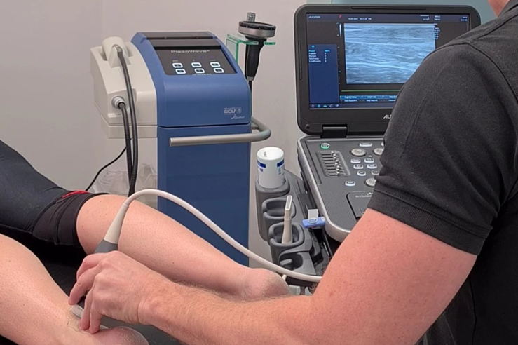 Ultrasound Guided Shockwave with The Performance Physio