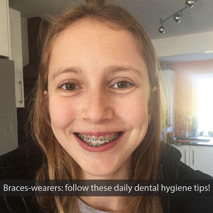 Daily Dental Hygiene Tips for Braces Wearers