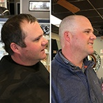 Trent-Head-Shave-StBaldricks-d