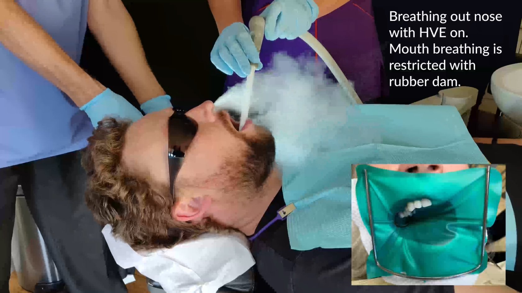HVE Smoke - Breathing out patients nose.