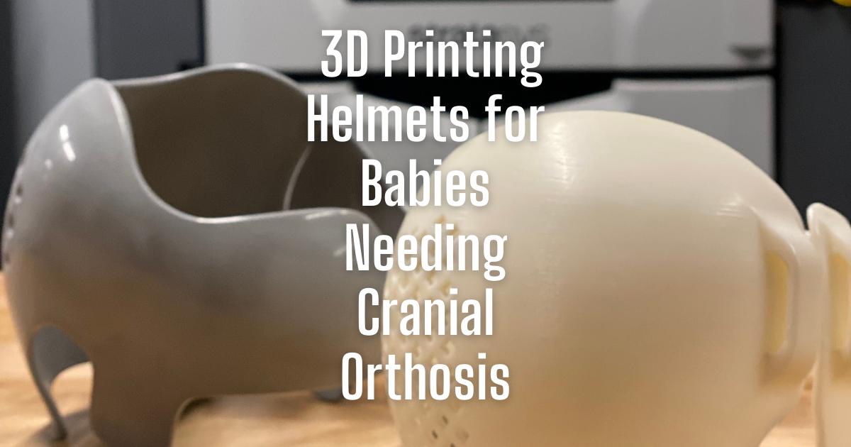 3D Printing Helmets for Babies Needing Cranial Orthosis