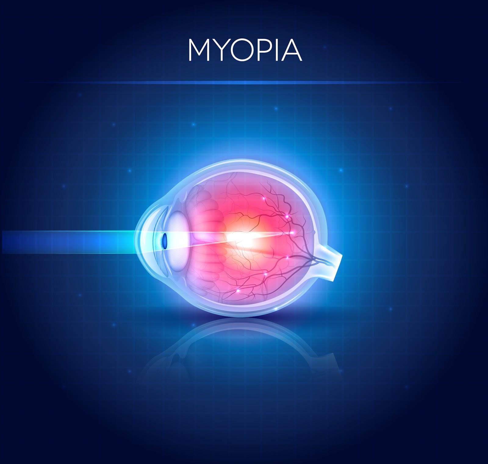 hipermetropie metode moderne de tratament