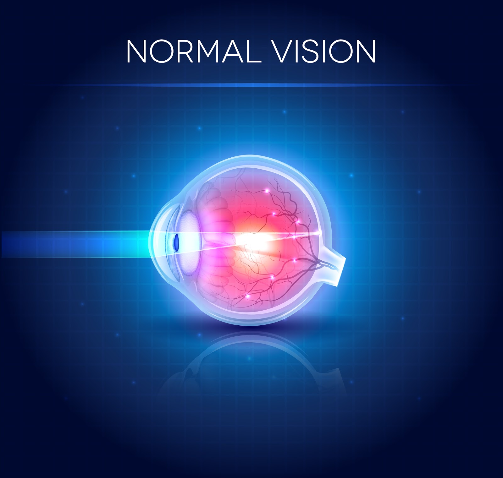 Astigmatism ce viziune Astigmatism miopic dificil pentru ambii ochi la copii: tratament - Viziune -