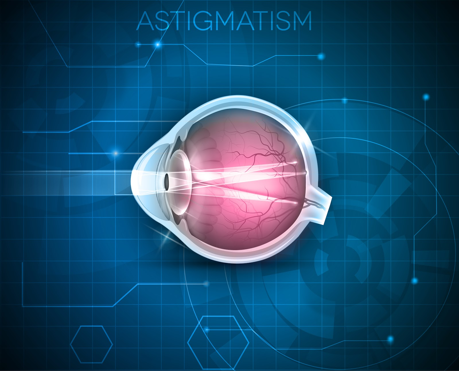 vedere in cazul astigmatismului