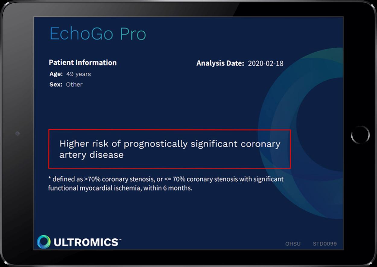 Ultromics EchoGo Pro