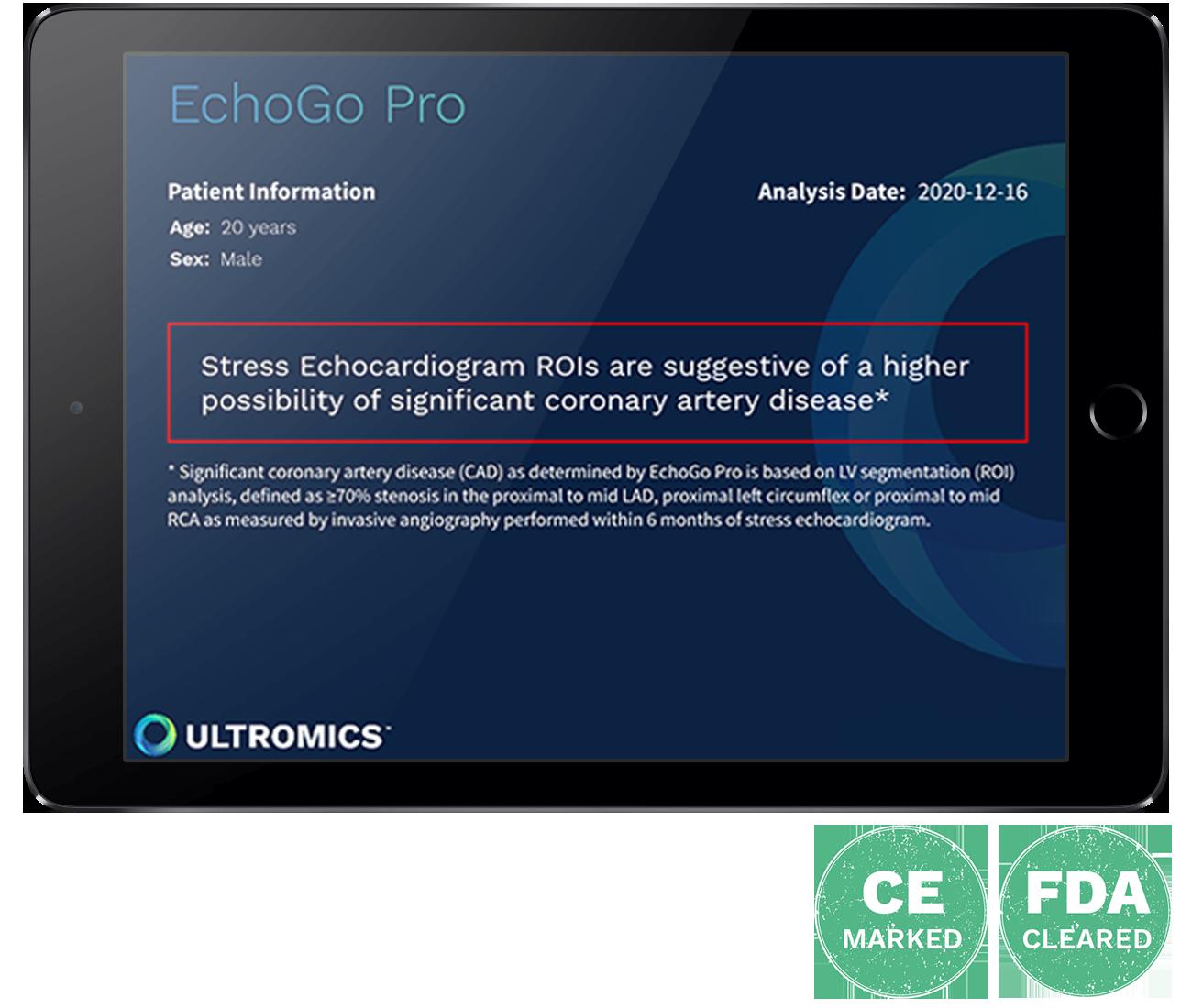echogo-pro-report-fda-ce-icons-1